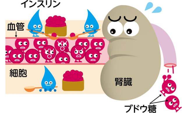 腎臓とインスリンとブドウ糖